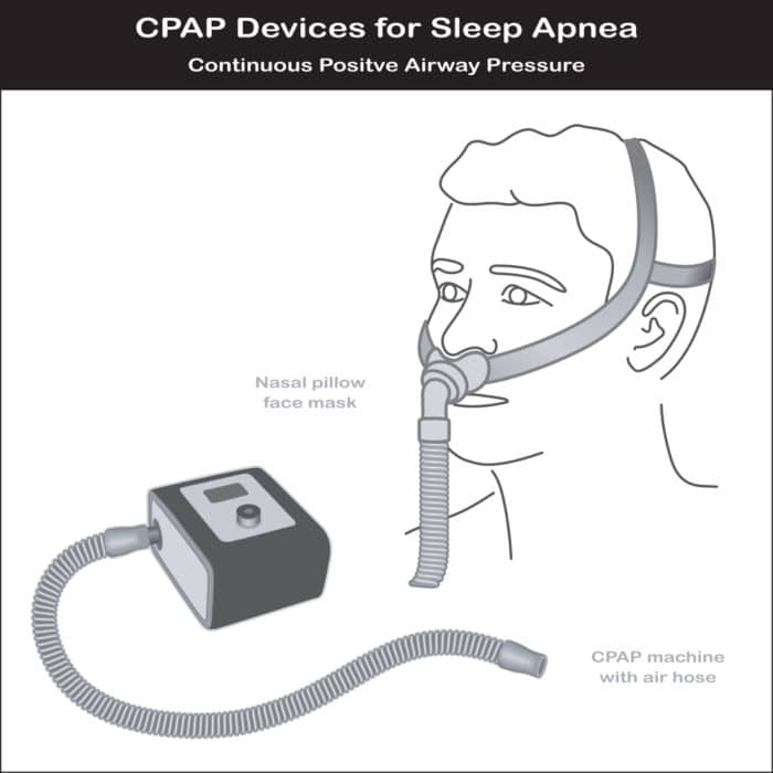 What is a CPAP Machine - Picture showing the basic machine parts