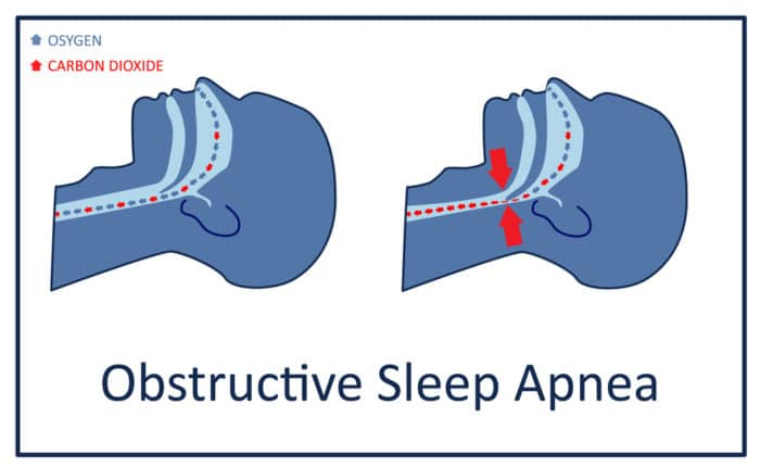 obstructive sleep apnea interrupts breathing