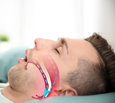 picture showing the narrow airway in a person with sleep apnea