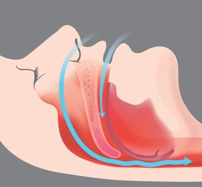 illustration showing passage of air through the upper airway